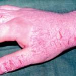 Allergic Skin Reaction