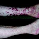 Allergic Vasculitis