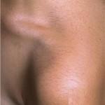 Asteatotic Eczema