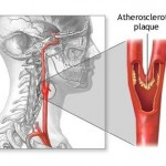 Athersclerotic Plaque