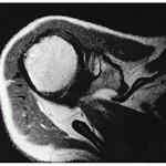 Avascular Necrosis