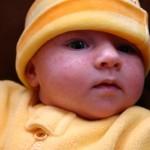 Baby Acne