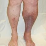 Blood Clots in Leg