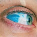 Blue Sclera