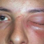Cellulitis Eye