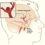 Cerebral Aneurism