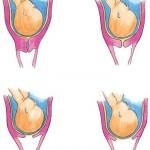 Cervical Effacement