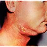 Cervicofacial Actinomycosis