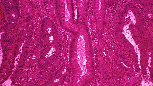 Colon Cancer Picture Medical Pictures Info Health