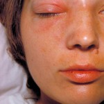 Pathophysiology of Orbital Cellulitis