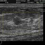 Breast Cancer Ultrasound