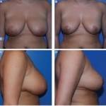 Breast Cellulitis