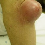Bursitis Knee