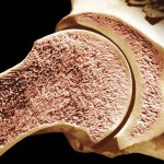 Cancellous Bone