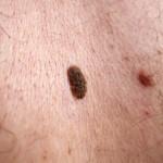 Cancer Mole