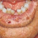 Cheilitis