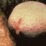 Chlamydia Gonorrhea