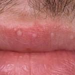 Lip Wart