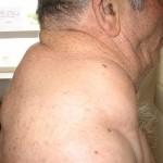 Lipomatosis