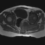 Pelvic Lipomatosis