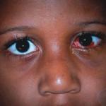 Periorbital Ecchymosis