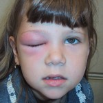 Periorbital Cellulitis Disease
