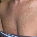 Pityriasis Versicolor