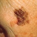 Skin Cancer Face