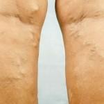 Skin Cancer Leg
