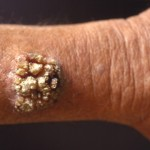 Skin Wart