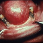 Gingival Cyst