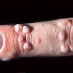 Hand Wart