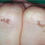 Laugier-Hunziker Syndrome