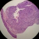 Leiomyoma