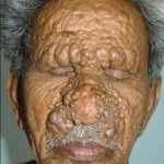 Lepra Lepromatosa
