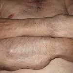Spinal Epidural Lipomatosis