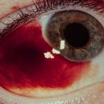 Subconjunctival Hemmorhage