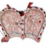 Alveoli Picture