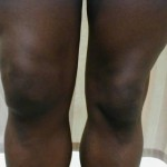 Bursitis Picture