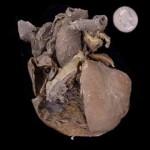 Congenital Heart Defect
