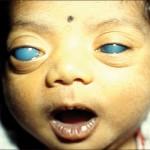 Congenital Glaucoma