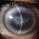 Map Dot Fingerprint Dystrophy