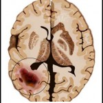Brain Tumor Picture