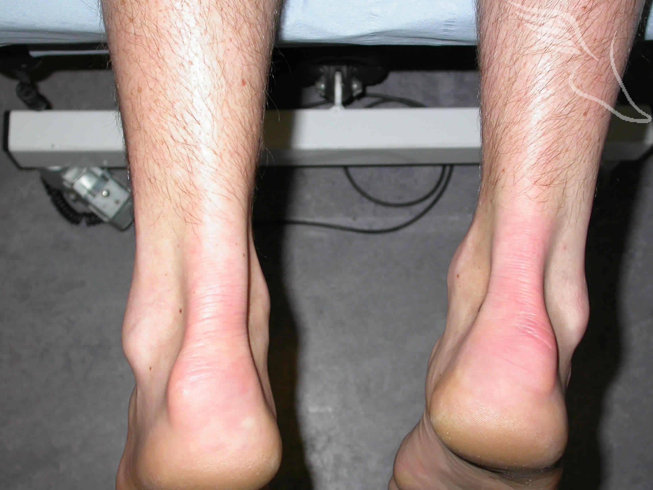 rehab of achilles tendon rupture Department of rehabilitation services  2) tendon shearing forces can rupture  the achilles  3) overuse injury occurs with forces within the physiological.