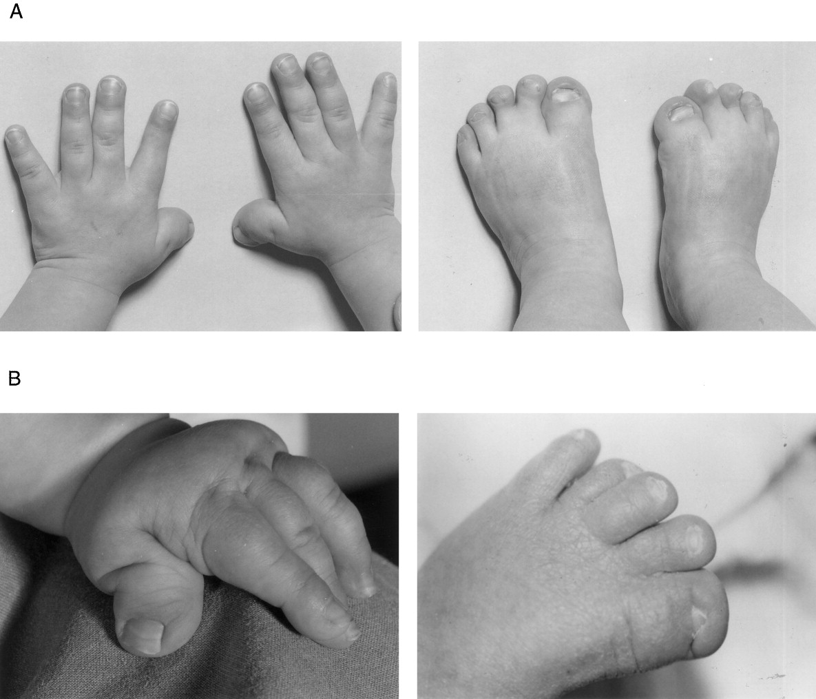 Achondroplasia; Severe Achondroplasia with Developmental ...