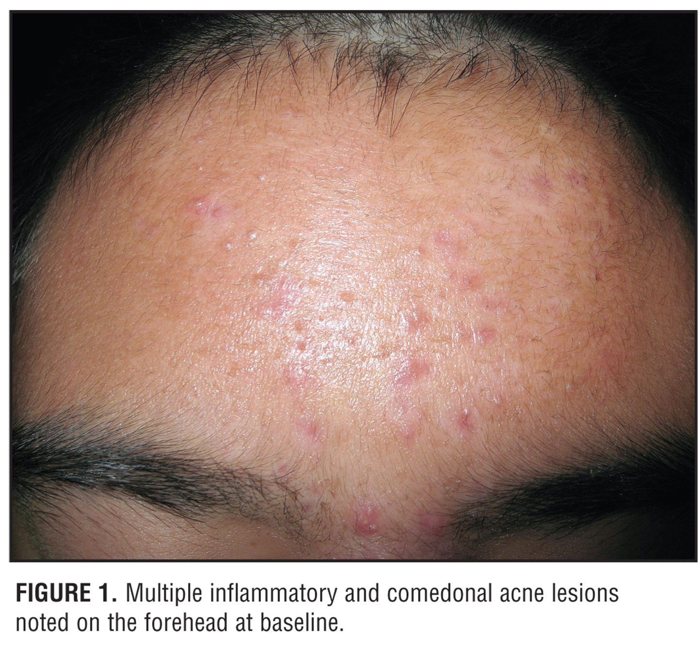 Medical Pictures Info – Acne Vulgaris