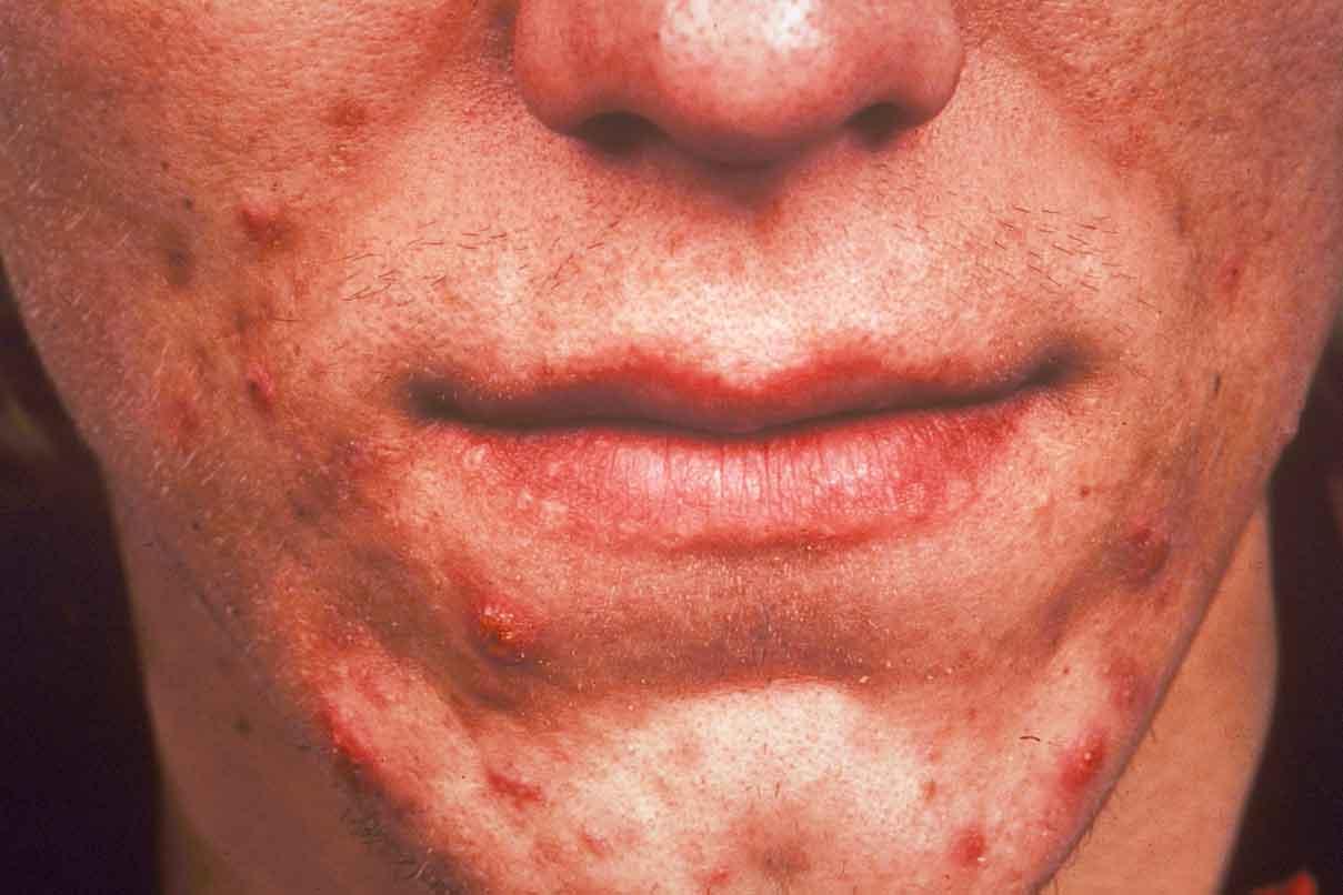 La psoriasis pustular el tratamiento diprospanom