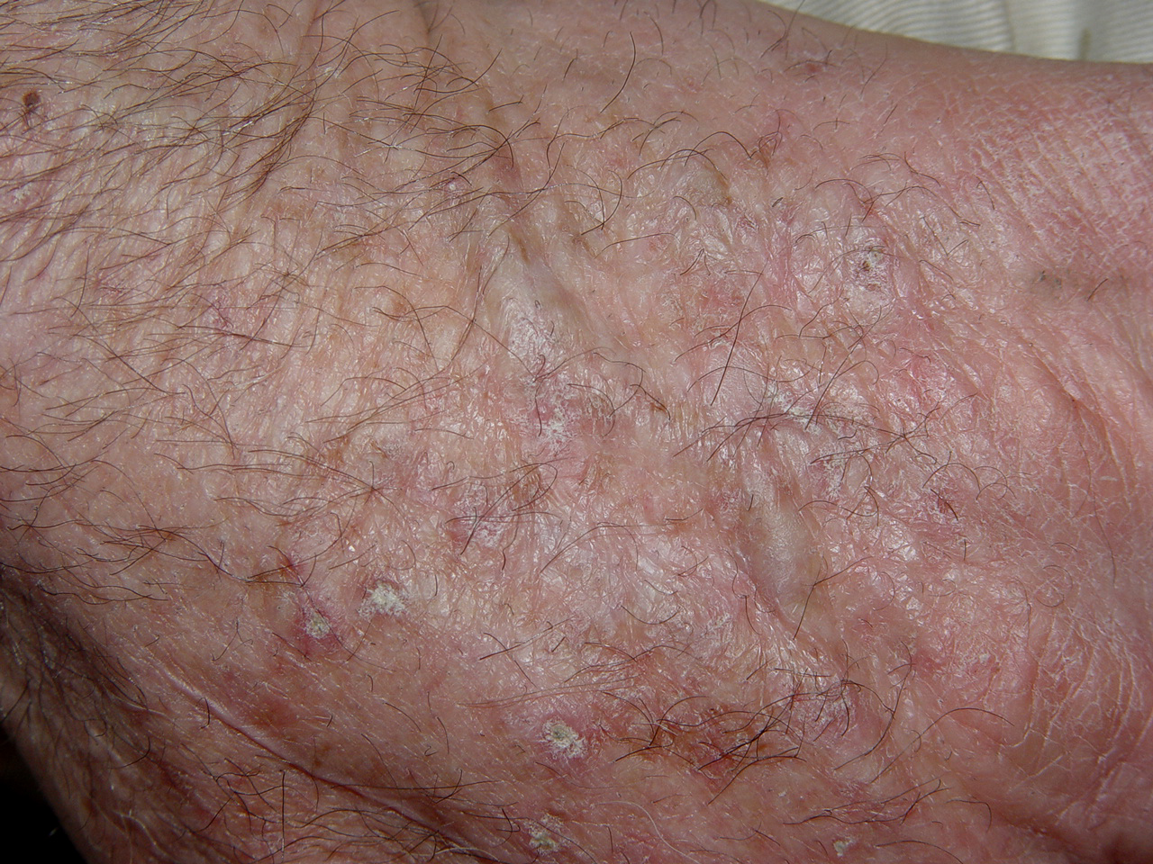 Actinic Keratosis - National Library of Medicine - PubMed ...