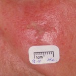 Actinic Keratosis Picture