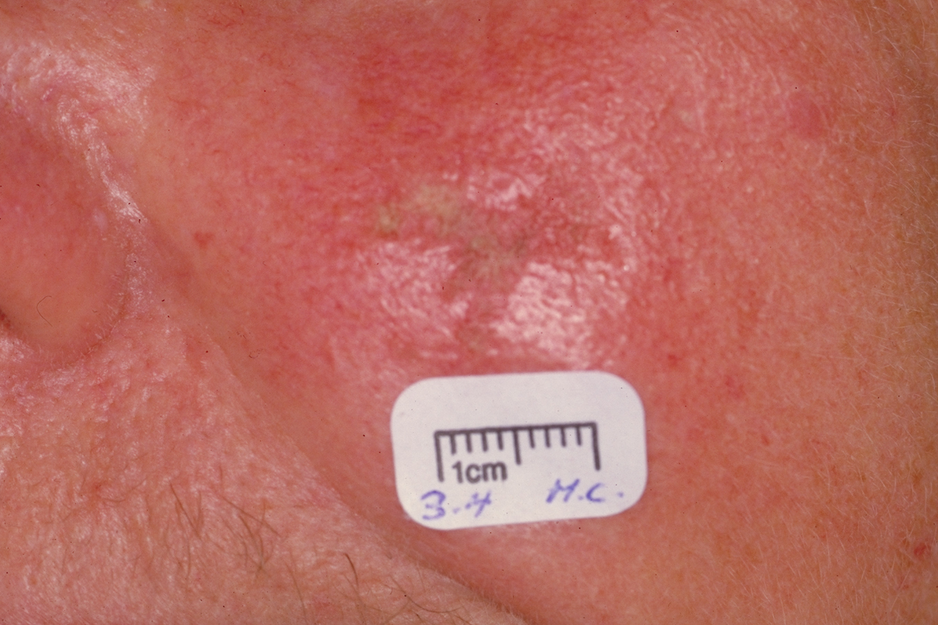 Images of Mild Actinic Keratosis Nose Pictures - #rock-cafe